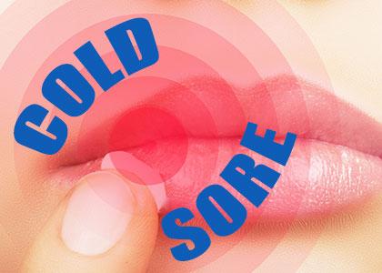 Cold Sores 101