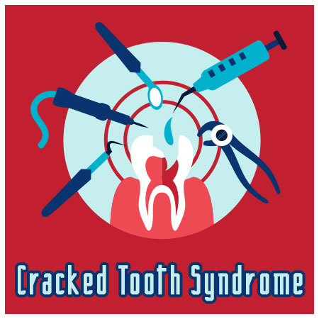 Crack Down on Cracked Tooth Syndrome