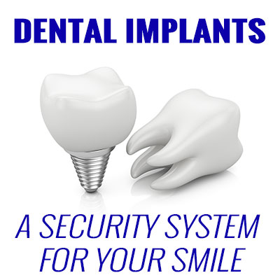 Dental Implants – A Security System for Your Smile